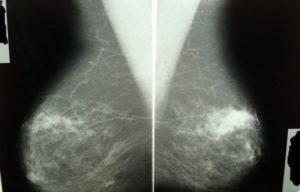 Аденоз молочных желез лечение
