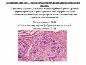 Периканаликулярная фиброаденома молочной железы
