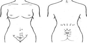 Гирудотерапия при миоме матки