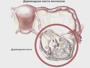 Дермоидная киста яичника мкб 10
