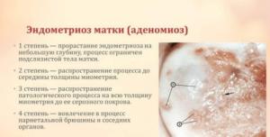 Внутренний эндометриоз 2 степени что это