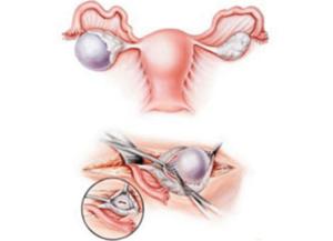 Дисфункция яичников репродуктивного периода