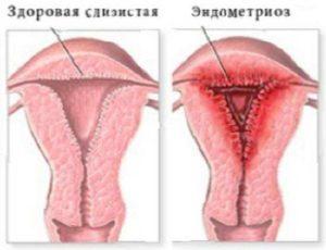Эндометриоз причины психологические
