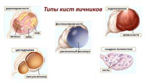 Киста яичника виды кист