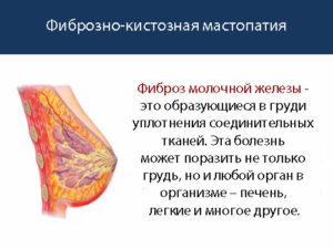 Очаг фиброза молочной железы
