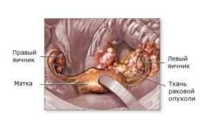 Операция при раке яичников