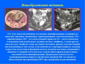 Метастазы при раке яичников у женщин