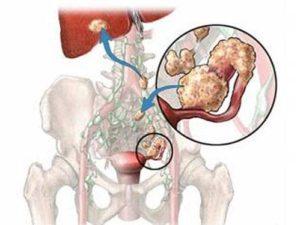 Рак яичника 4 стадии с метастазами