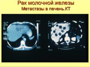 Рак молочной железы метастазы