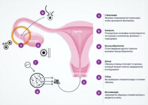 Гормональная стимуляция яичников
