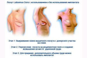Реконструкция молочной железы