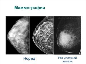 С какого возраста можно делать маммографию молочных желез