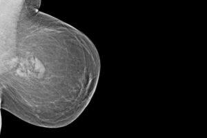 Саркома молочной железы прогноз выживания