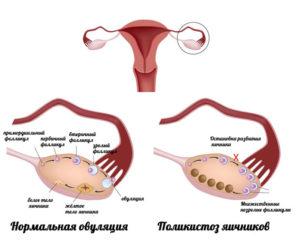 Мало фолликулов в яичниках можно ли забеременеть