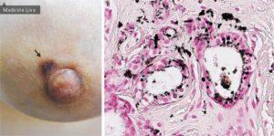 Как выглядит рак молочной железы