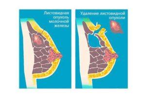 Листовидная опухоль молочной железы