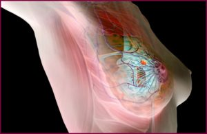 Болезни молочных желез у женщин