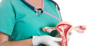 Лечение миома шейки матки