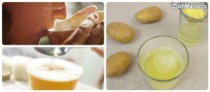 Сок картофельный при миоме
