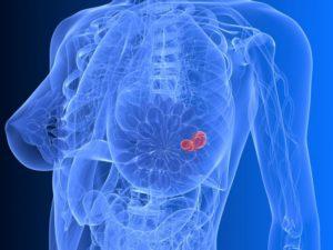 Онкология рак молочной железы
