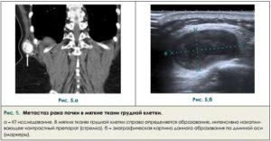 Метастазы в почки при раке молочной железы