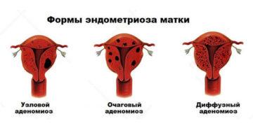 Узловая форма эндометриоза матки