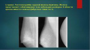 Фиброзная тяжистость молочных желез