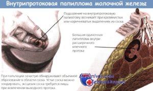 Внутрипротоковая папиллома молочной железы лечение