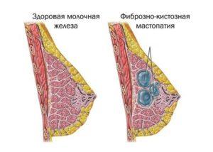 Болят обе молочные железы причины