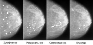 Микрокальцинаты в молочной железе