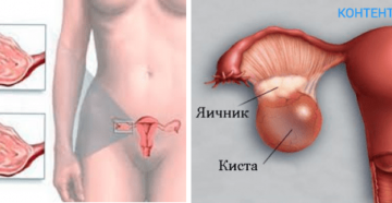 Асцит при кисте яичника