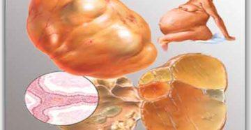 Псевдомуцинозная киста яичника