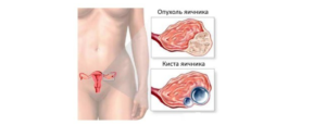Рак яичников у мужчин первые признаки и симптомы