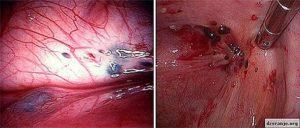 Чем опасен эндометриоз матки