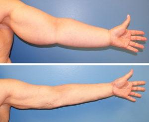 Лимфостаз руки после удаления молочной железы