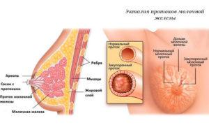 Эктазия протоков молочной железы