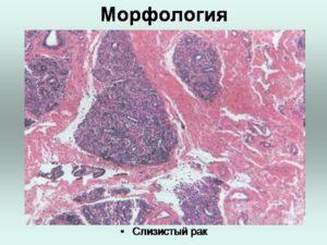 Слизистый рак молочной железы