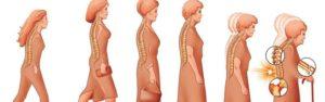 Остеопороз при климаксе