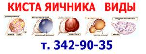 Кисты яичников классификация