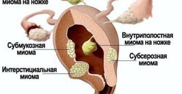 Миома субсерозная и беременность