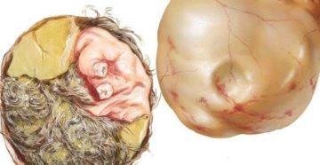 Киста яичника дермоидная и беременность