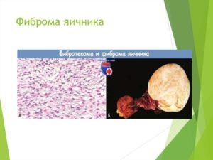 Текофиброма яичника что это