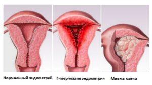 Гиперплазия при климаксе