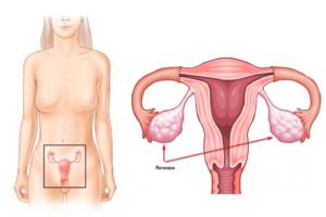 Где находится яичники у женщин