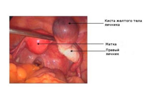 Персистенция желтого тела в правом яичнике