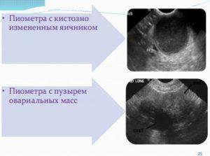 Кистозное изменение правого яичника