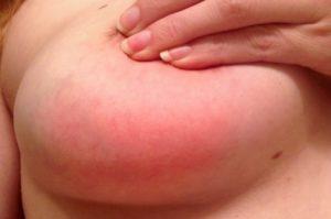Зуд в молочной железе причины