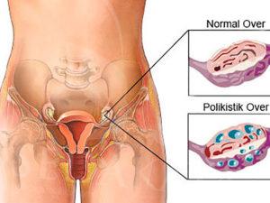 У мужчин яичники болят