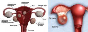 Симптомы миомы матки и кисты яичника