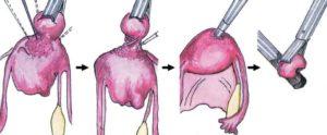 Операции при миоме матки
